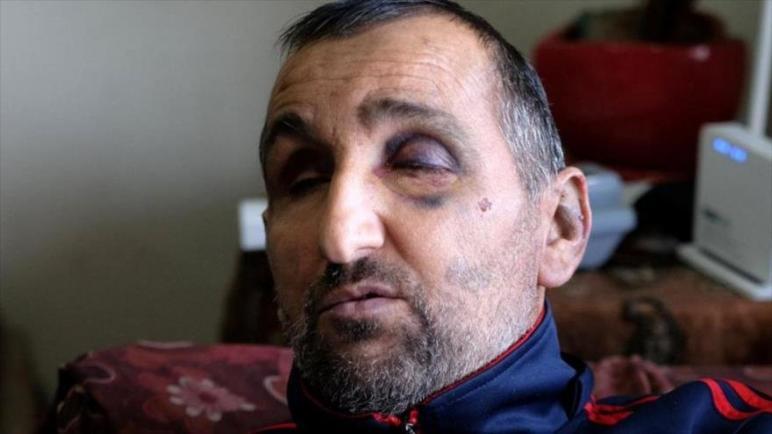 فيديو مروع: جنود الكيان الإسرائيلي يضربون رجل فلسطيني ضرير وعاجز